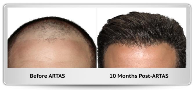 Hair Transplant Denver CO